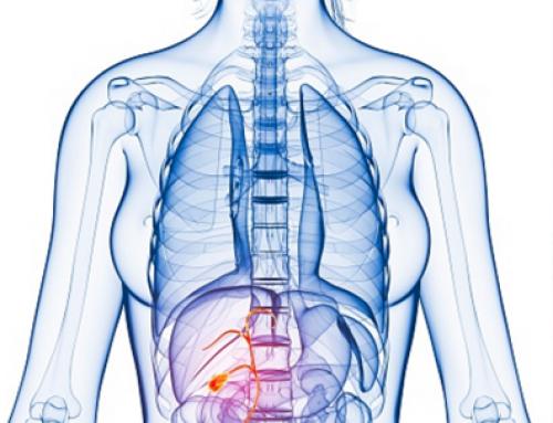 Mujeres, las más afectadas por inflamación en vesícula biliar