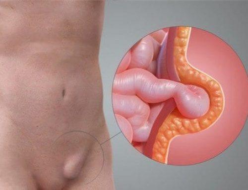 ¿Qué tan riesgosoes una hernia inguinal?