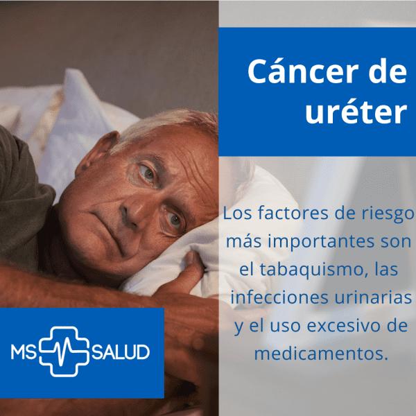 cancer de ureter 2