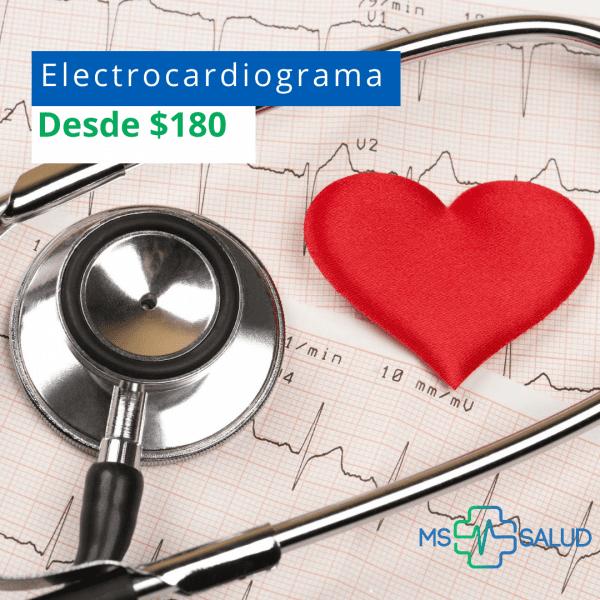 electrocardiograma 4