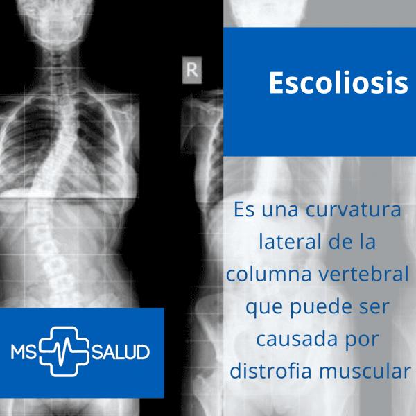 escoliosis blog ms mas salud