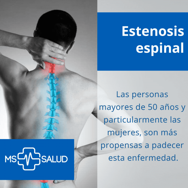 estenosis espinal 2