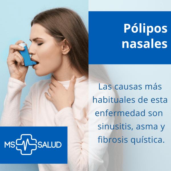 polipos nasales 2