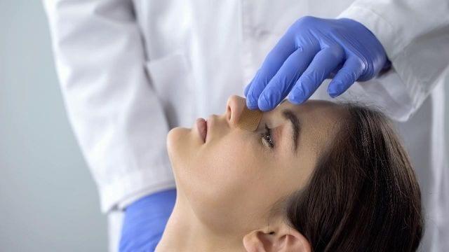 polipos nasales 3