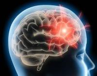 brain min
