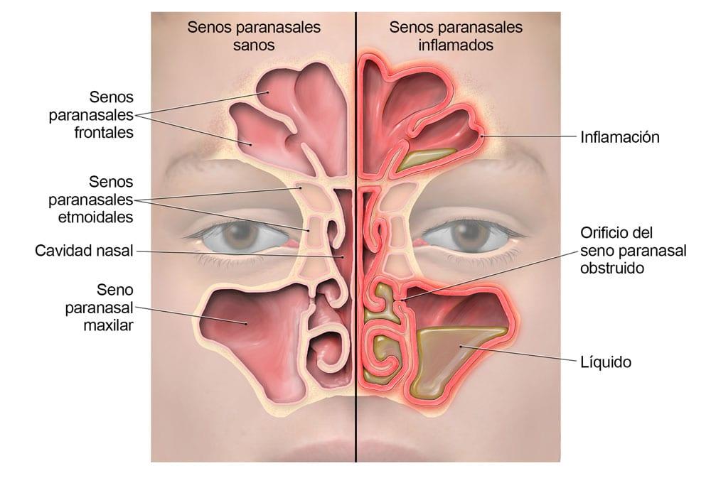 sinusitis lg sp