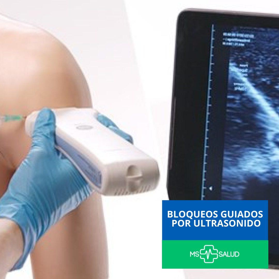 ms mas salud clinica del dolor bloqueo guiado por ultrasonido