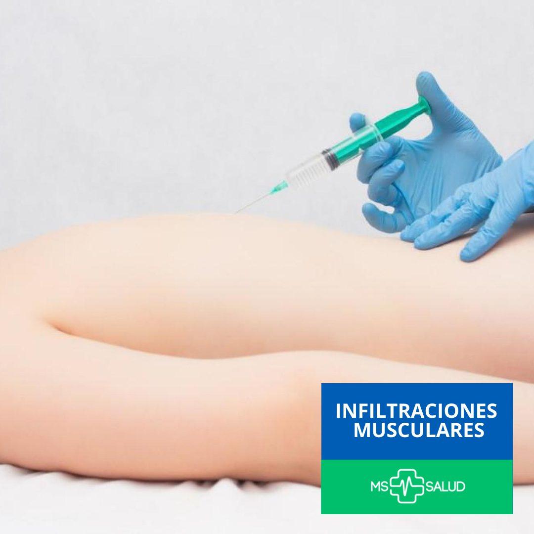 clínica del dolor infiltraciones musculares